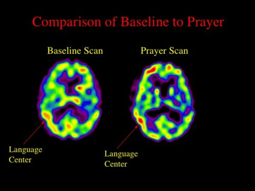 brain scan 1