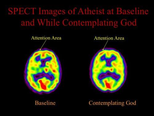 brain scan 3